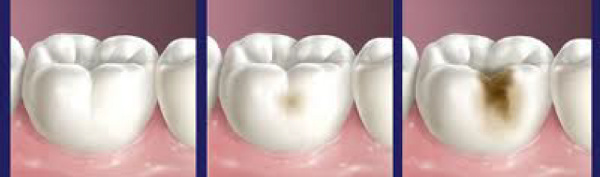 dents_caries